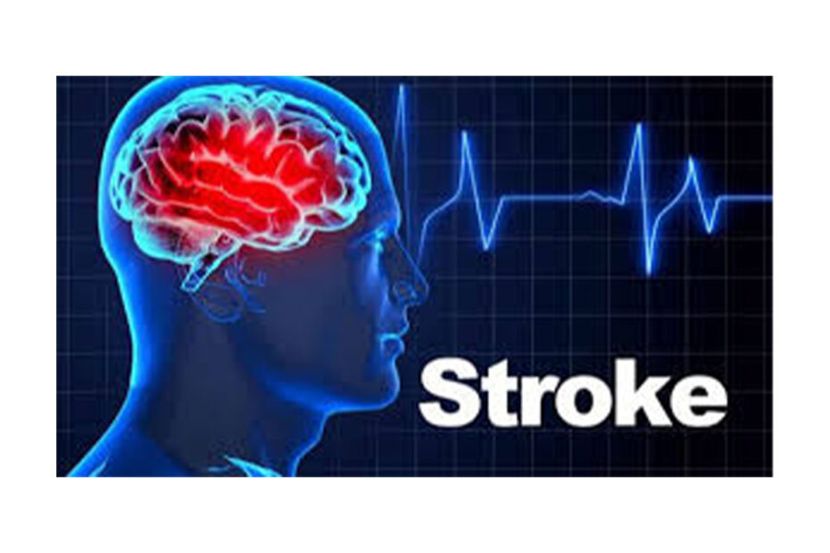 Why stroke happen.Learn how to prevent it.